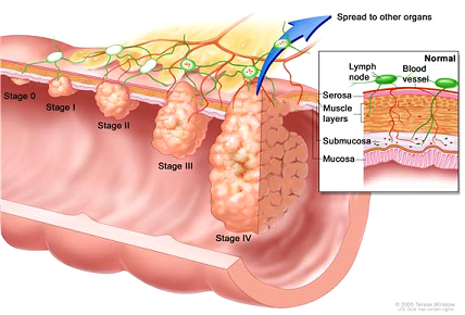 As colon cancer progresses from Stage 0 to Stage IV, the cancer cells grow through the layers of the colon wall and spread to lymph nodes and other organs.