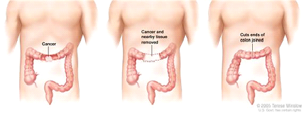 Colon cancer surgery with anastomosis. Part of the colon containing the cancer and nearby healthy tissue is removed, and then the cut ends of the colon are joined.