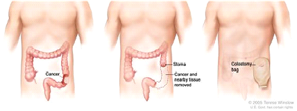 Colon cancer surgery with colostomy. Part of the colon containing the cancer and nearby healthy tissue is removed, a stoma is created, and a colostomy bag is attached to the stoma.