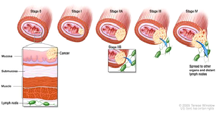As esophageal cancer progresses from Stage 0 to Stage IV, the cancer cells grow through the layers of the esophagus wall and spread to lymph nodes and other organs.