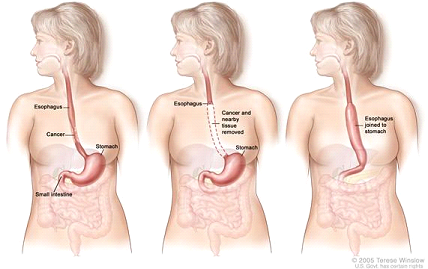 Esophagectomy. A portion of the esophagus is removed and the stomach is pulled up and joined to the remaining esophagus.