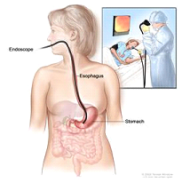 Upper endoscopy. A thin, lighted tube is inserted through the mouth to look for abnormal areas in the esophagus, stomach, and first part of the small intestine.