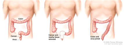 Rectal cancer surgery with anastomosis. The rectum and part of the colon are removed, and then the colon and anus are joined.